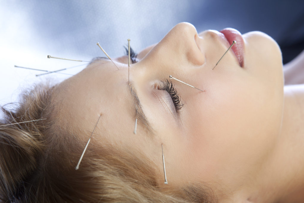 Facial Acupuncture treatment - Somerset